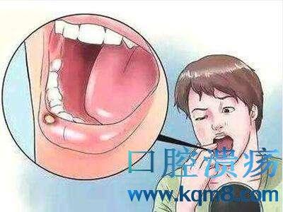 我们得了口腔溃疡,该如何治疗呢?