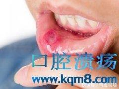 引起口腔溃疡的发病原因一般都离不开下面四种