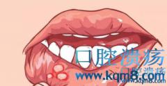 夏天经常口腔溃疡怎么办?分享两个根治口腔溃疡的小妙招