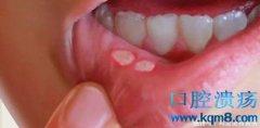 口腔溃疡疼痛难忍?5个偏方快速治愈口腔溃疡