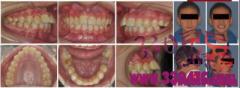 舌侧活动翼矫治技术——临床病例