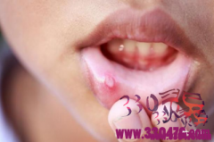 口腔溃疡为什么总是发作?3个口腔溃疡发病原因,你该反省一下