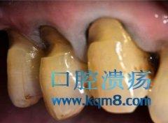 楔状缺损的牙修复时需要备洞形吗?