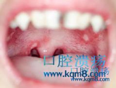为何会患上口腔溃疡?口腔溃疡反复发作什么原因?