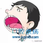 网纹型口腔扁平苔藓,糜烂型口腔扁平苔藓,萎缩型口腔扁平苔藓症状