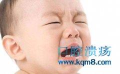 宝宝口腔溃疡如何护理?