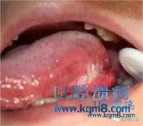 口腔溃疡长时间不好要小心了,有可能是口腔癌!