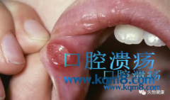 口腔溃疡是身体缺什么东西吗,怎么调理?