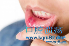 面对口腔溃疡反复发作,怎么办?