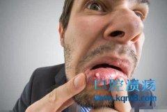 经常性的口腔溃疡怎么回事?什么原因导致的?