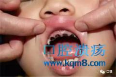 婴儿到少儿期宝宝护牙攻略