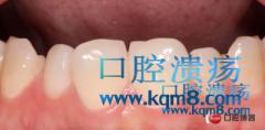前牙仿生瓷贴面修复