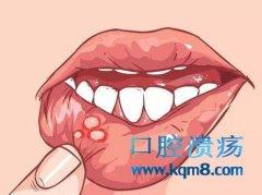 口腔溃疡反复不停要当心口腔癌