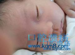 宝宝口腔溃疡了如何护理?