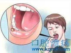 放疗、化疗患者如何应对口腔溃疡!