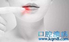 口腔溃疡反反复复怎么办?口腔溃疡漱口方快速治疗口腔溃疡