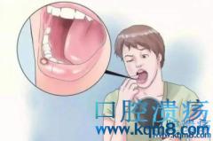 口腔溃疡超一月当心是口腔癌