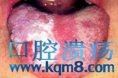 口腔白斑的危害都有哪些?