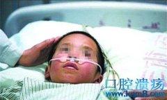 6岁孩子吃槟榔口腔溃疡严重,得口腔癌切除舌头