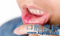 口腔溃疡原因都有哪些?溃疡怎么破?