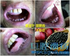 黑豆牙 猖獗齿 镜面舌 干燥症