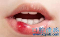 口腔溃疡——白塞病的前期症状表现