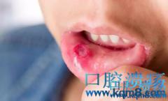 """口腔溃疡不注意,也会变成""""大病"""",1个食疗方帮助改善"""