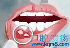 反复口腔溃疡怎么治疗?