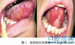 结核性口腔溃疡1例