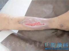 陕西省西安市王先生小腿皮肤溃疡治疗病例
