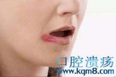 嘴唇反复开裂发干什么原因?