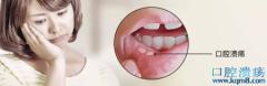 口腔溃疡,根源不一定在口腔