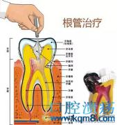 口腔问题——牙髓炎