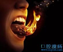 口腔溃疡反复发作,生姜灭火好得快!