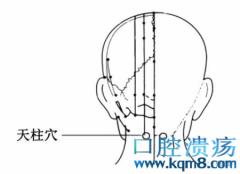 天柱穴的准确位置图功效与作用:通经活络、有效调理肾气,治疗腰肌劳损