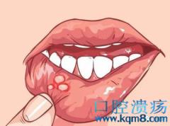 口腔溃疡发病原因可能是脾虚!李东垣补中益气汤组成方歌功效与作用