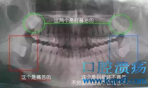 牙齿长什么样?看下牙齿小牙片(根尖片)、全景片(曲面断层片)、CBCT(锥形束CT)