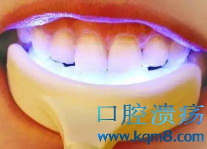 洗牙和牙齿美白,不是一回事!