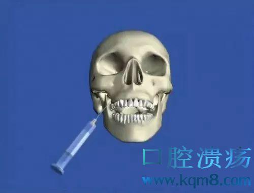 口腔神经阻滞麻醉技巧