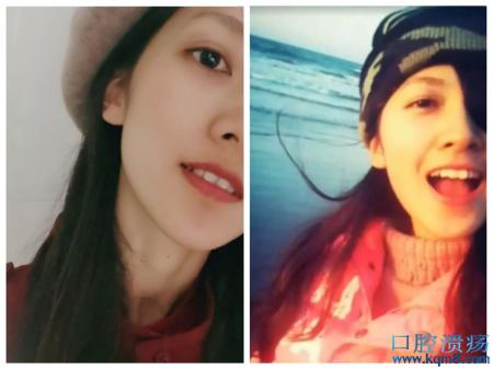 广东最美独眼女孩陈晓婷:没什么大不了,因为一只眼也能做得很好