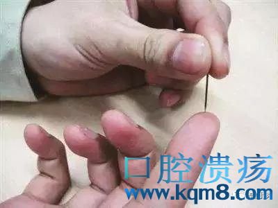 螺针穴针刺放血:治疗急慢性咽喉炎、扁桃体炎、嗓子疼痛的小经验