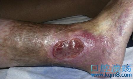 下肢溃疡治疗的复杂性和治疗路径