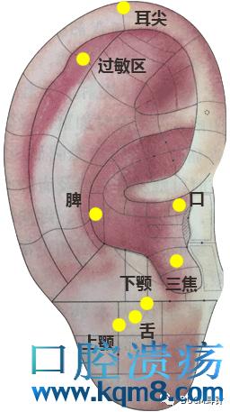 用耳针治疗口腔溃疡方法