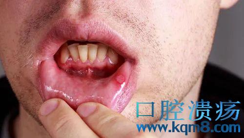 口腔溃疡容易反复怎么办,生活中如何预防口腔溃疡反复?