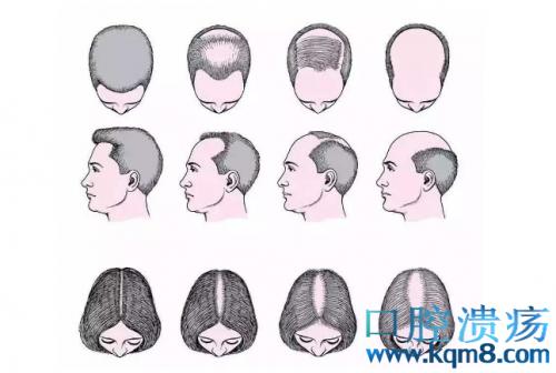 雄激素性脱发的发病机制与治疗方法